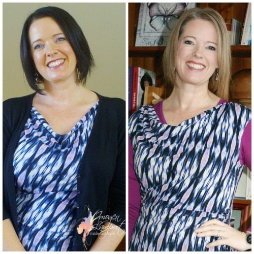 Breast Reduction Update – 6 Weeks Post Surgery