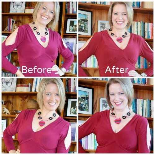 Breast Reduction Update – 4 Weeks Post Surgery