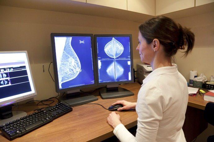 genius 3d mammogram