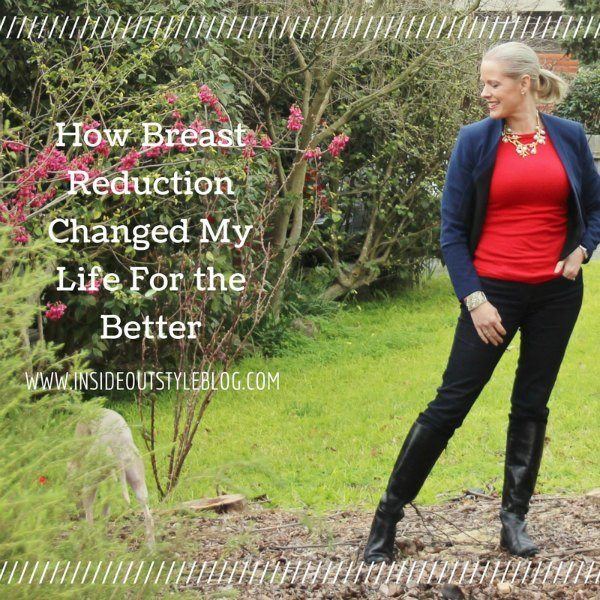 How breast reduction changed my life