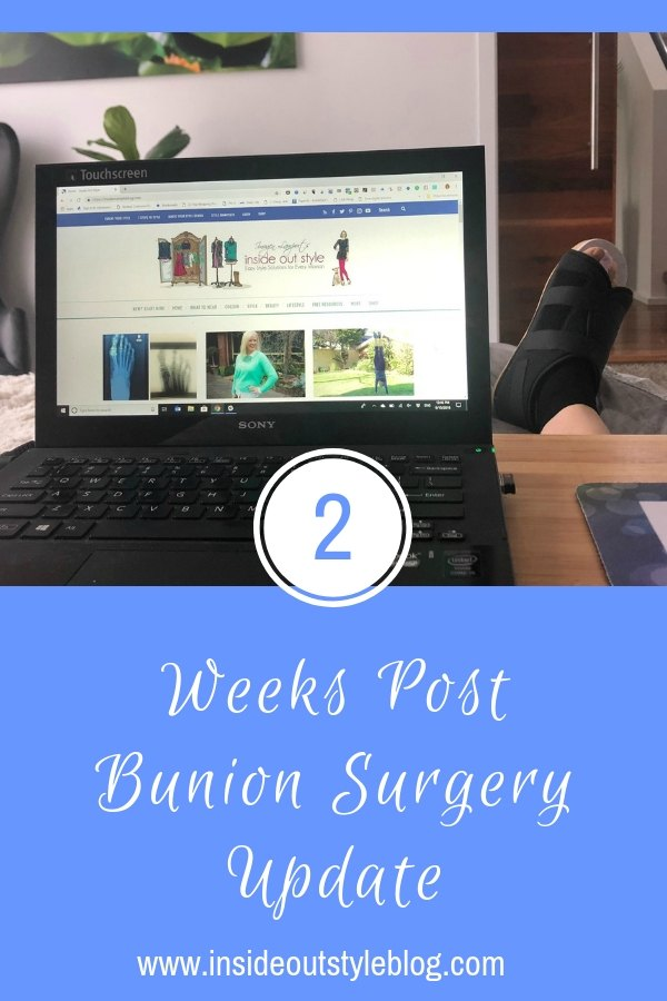 2 weeks post bunion surgery update