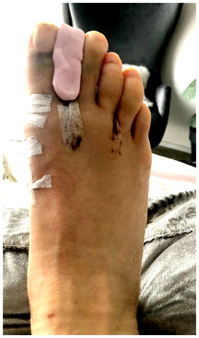 Bunion Surgery 2 Week Post-Operation Update - Inside Out Style