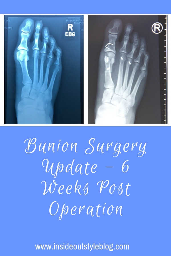 Patient Experience - 6 Weeks after bunion surgery