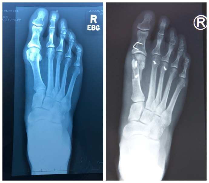 xrays before and after bunion surgery