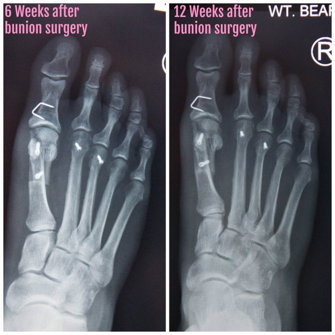 12 weeks post operative bunion surgery