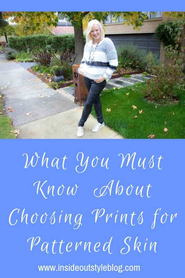 What You Must Know About Choosing Prints for Patterned Skin
